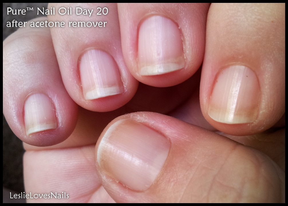 pore nails